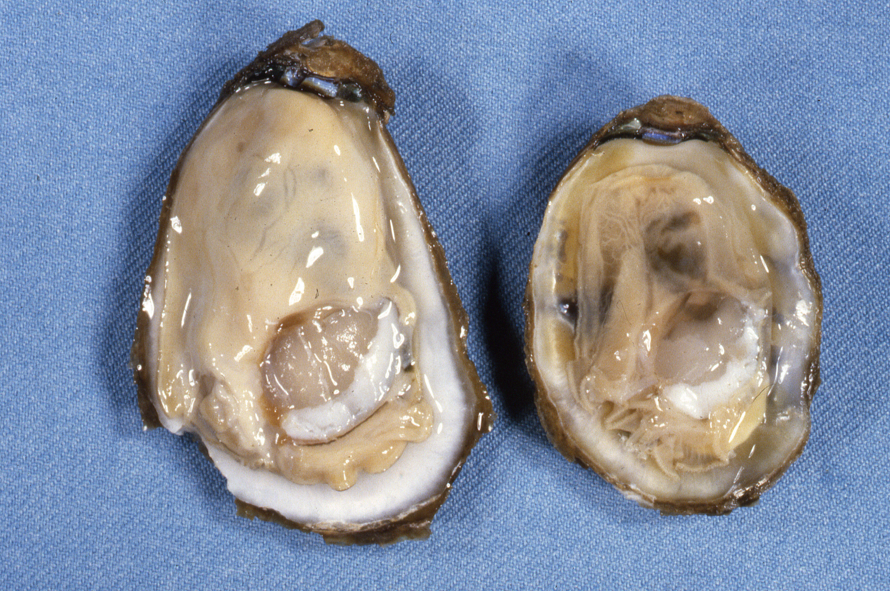 Heavy infection of Dermo in the lining of an oyster stomach. Credit: Susan Ford
